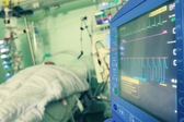 Monitoring of the patient in hospital — Stock Photo
