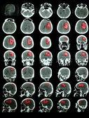 CT of the brain with hemorrhagic stroke. Professional training i — Stock Photo