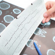 Interpretation of medical tests in hospital — Stock Photo #38939463