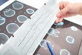 Interpretation of medical tests in hospital — Stock Photo