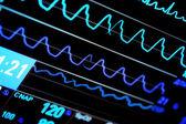 Contemporary ICU monitor — Stock Photo