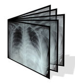 Collage from chest X-rays. Isolated on white — Stock Photo