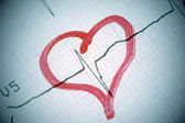 Heart shape on electrocardiogram. — Foto Stock