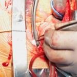 Постер, плакат: Heart surgery Open heart surgery Coronary artery bypass surger