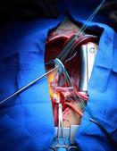 Valve implantation in the human heart — Stock Photo