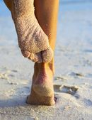 Women's legs on a beach — Stock Photo