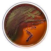 Petri dish with bacteria — Stock Photo