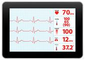 Modern Electrocardiogram Monitor Device Display — Stock Vector