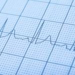 Normal Electrocardiogram Record — Stock Photo #42281645