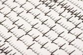 Extrasystoles On Electrocardiogram — Stock Photo