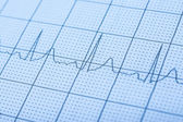 Normal Electrocardiogram Record — Stock Photo