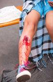 Serious injury on girl's leg — Stockfoto