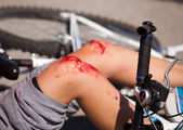 Bike injuries — Stock Photo