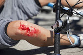 Bike fall injuries — Stock Photo