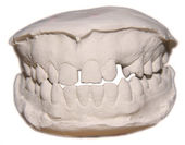 The view of dental cast,front,for orthodontics and education — Stock Photo