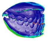 Dental cast, der linken seite, ton — Stockfoto