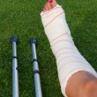 Sprain - Stock Photo