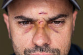 Black eyes of a injured man — Stock Photo