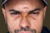 Black eyes of a injured man — Stock Photo