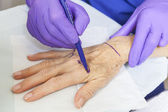 Plastic Surgeon Marking Woman's Hand for Surgery — Stock Photo