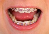 Pink braces — Stock Photo