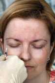 Botox injection in the eye corner — Stock Photo