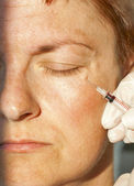 Botox injection — Stock Photo
