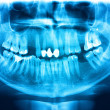 Blue red x-ray teeth scan mandible. — Stock Photo