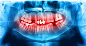 Blue and red x-ray teeth scan mandible. — Stock Photo