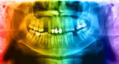 Multicolored x-ray teeth scan mandible. — Stock Photo