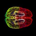 Human brain in x-ray - top view — Stock Photo