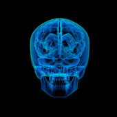 Human brain X ray - back view — Stock Photo