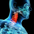 3d rendered illustration - pain neck — Lizenzfreies Foto