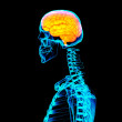 Human red brain X ray - side view — Stock Photo