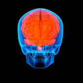 Human red brain X ray - back view — Stock Photo