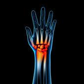 3d rendered anatomy illustration - hand pain — Stock Photo