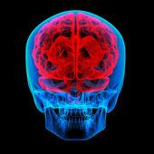 Human brain X ray - back view — Stock Photo