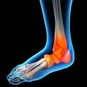 Ankle pain - detail — Stock Photo