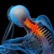 3d rendered illustration - pain neck — Stock Photo