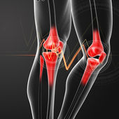 Human knee pain with the anatomy of a skeleton leg — Stock Photo