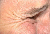 Close up of wrinkles around eye — Stock Photo