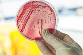 Petri dish with bacteria — Stock Photo