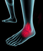 Foot seen on x-ray with pain — Stock Photo