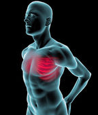 Human x-ray with pain in the rib cage — Stock Photo