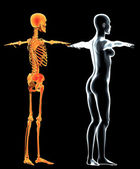 Side view x-ray of woman, body and skeleton — Stock Photo