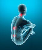 Man backache pain x-ray skeleton — Stock Photo