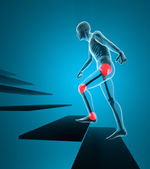 Joint pain man climb the stairs to the x-ray — Stock Photo