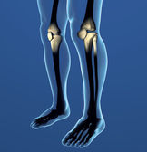 X-ray knees — Stock Photo