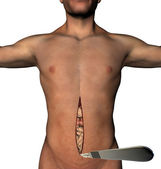 Traditional surgery scalpel abdomen cut human body — Stock Photo