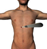 LESS surgery abdomen incision scalpel a human body — Stock Photo